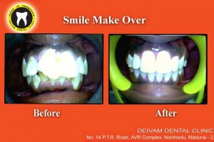smile make over before and after images